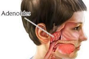Аденоидит: причини виникнення та основні симптоми, способи лікування захворювання