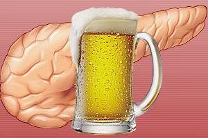 Алкогольный панкреатит: причини виникнення та основні симптоми, способи лікування захворювання