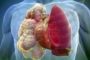 Аллергический альвеолит: причины возникновения и основные симптомы, способы лечения заболевания