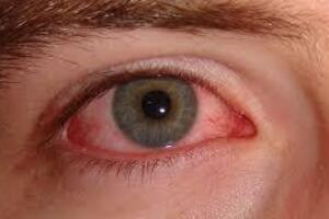 Аллергический конъюнктивит: причины возникновения и основные симптомы, способы лечения заболевания