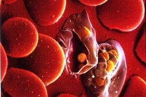 Амебиаз легких: причины возникновения и основные симптомы, способы лечения заболевания