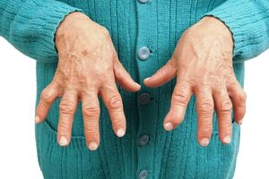 Ревматоидный артрит: причины возникновения и основные симптомы, способы лечения заболевания