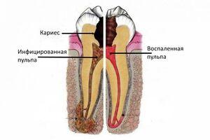 Пульпит: причини виникнення та основні симптоми, способи лікування захворювання