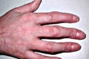 Артрит пальцев: причины возникновения и основные симптомы, способы лечения заболевания