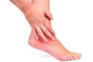 Артрит голеностопного сустава: причины возникновения и основные симптомы, способы лечения заболевания