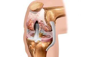 Артрит коленного сустава: причины возникновения и основные симптомы, способы лечения заболевания
