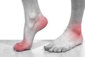 Артрит стопы: причины возникновения и основные симптомы, способы лечения заболевания