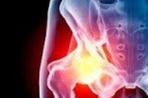 Артрит тазобедренного сустава: причины возникновения и основные симптомы, способы лечения заболевания