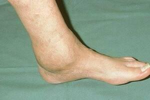 Артроз голеностопного сустава: причини виникнення та основні симптоми, способи лікування захворювання