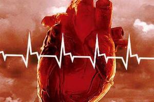 Аритмогенная правожелудочковая кардиомиопатия: причини виникнення та основні симптоми, способи лікування захворювання