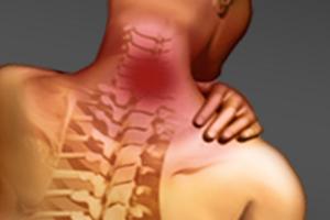 Остеохондроз: причины возникновения и основные симптомы, способы лечения заболевания