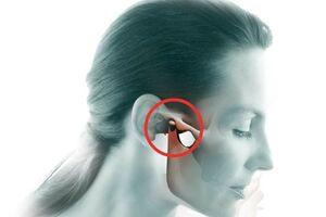 Артрит ВНЧС (височно-нижнечелюстного сустава): причини виникнення та основні симптоми, способи лікування захворювання