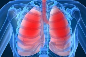 Пневмония: причини виникнення та основні симптоми, способи лікування захворювання