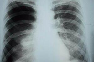 Пневмоторакс: причини виникнення та основні симптоми, способи лікування захворювання