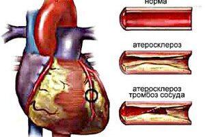 Атеросклеротический кардиосклероз: причины возникновения и основные симптомы, способы лечения заболевания