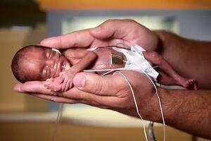 Анемия недоношенных детей: причини виникнення та основні симптоми, способи лікування захворювання