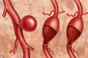 Аневризма аорты: причини виникнення та основні симптоми, способи лікування захворювання