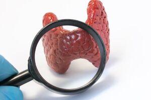 Безболевой тиреоидит: причины возникновения и основные симптомы, способы лечения заболевания