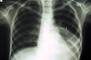 Бактериальная деструкция легких: причины возникновения и основные симптомы, способы лечения заболевания