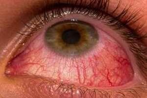 Конъюнктивит: причины возникновения и основные симптомы, способы лечения заболевания