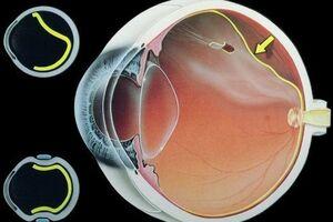 Отслойка сетчатки глаза: причины возникновения и основные симптомы, способы лечения заболевания