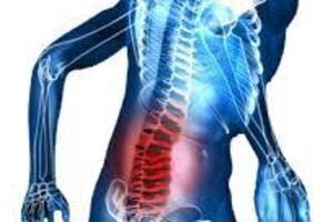 Анкилозирующий спондилит: причины возникновения и основные симптомы, способы лечения заболевания