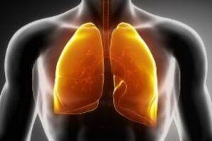 Бериллиоз: причини виникнення та основні симптоми, способи лікування захворювання