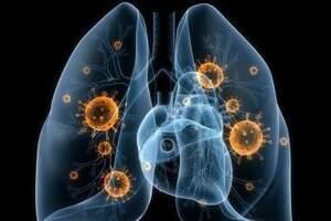 Пиоторакс: причины возникновения и основные симптомы, способы лечения заболевания