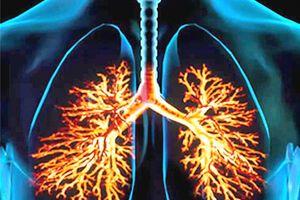 Пневмокониоз: причины возникновения и основные симптомы, способы лечения заболевания