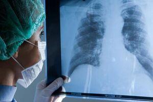 Саркоидоз легких: причины возникновения и основные симптомы, способы лечения заболевания