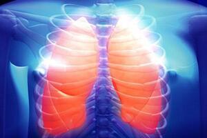 Эмфизема легкого: причины возникновения и основные симптомы, способы лечения заболевания