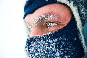 Обморожение: причины возникновения и основные симптомы, способы лечения заболевания