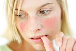 Дискоидная красная волчанка: причины возникновения и основные симптомы, способы лечения заболевания