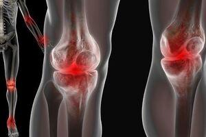 Артропатия: причины возникновения и основные симптомы, способы лечения заболевания