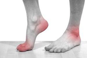 Подагрический артрит: причини виникнення та основні симптоми, способи лікування захворювання