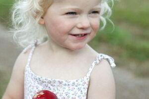 Альбинизм: причини виникнення та основні симптоми, способи лікування захворювання