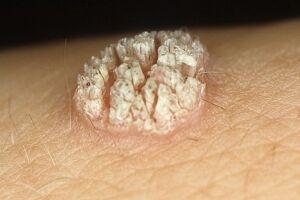 Бородавка обыкновенная: причины возникновения и основные симптомы, способы лечения заболевания