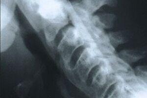 Болезнь Форестье: причини виникнення та основні симптоми, способи лікування захворювання
