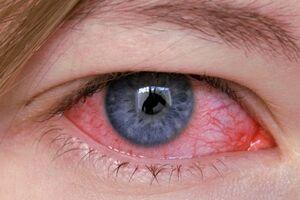 Весенний конъюнктивит: причины возникновения и основные симптомы, способы лечения заболевания