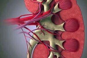 Болезнь Берже: причины возникновения и основные симптомы, способы лечения заболевания