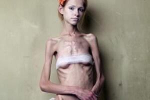Анорексия: причини виникнення та основні симптоми, способи лікування захворювання