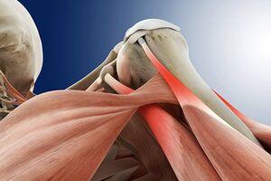 Тендинит плечевого сустава: причини виникнення та основні симптоми, способи лікування захворювання
