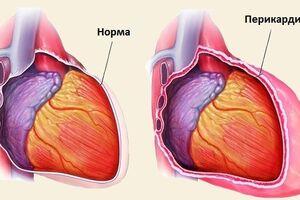 Тампонада сердца: причины возникновения и основные симптомы, способы лечения заболевания