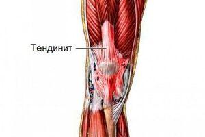 Тендинит коленного сустава: причини виникнення та основні симптоми, способи лікування захворювання