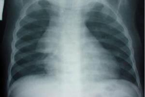 Тимомегалия: причины возникновения и основные симптомы, способы лечения заболевания