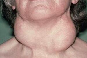 Тиреоидит Риделя: причини виникнення та основні симптоми, способи лікування захворювання