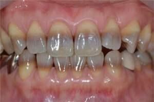 Тетрациклиновые зубы: причины возникновения и основные симптомы, способы лечения заболевания
