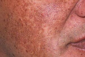 Токсическая меланодермия: причини виникнення та основні симптоми, способи лікування захворювання