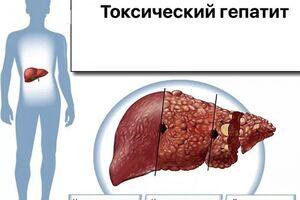 Токсический гепатит: причины возникновения и основные симптомы, способы лечения заболевания
