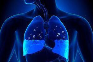 Токсический отек легких: причини виникнення та основні симптоми, способи лікування захворювання